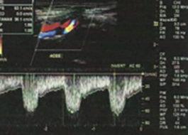 Carotid Artery Ultrasound 4