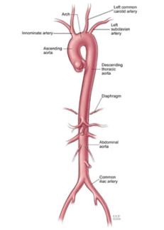 Ultrasound Of Aorta2