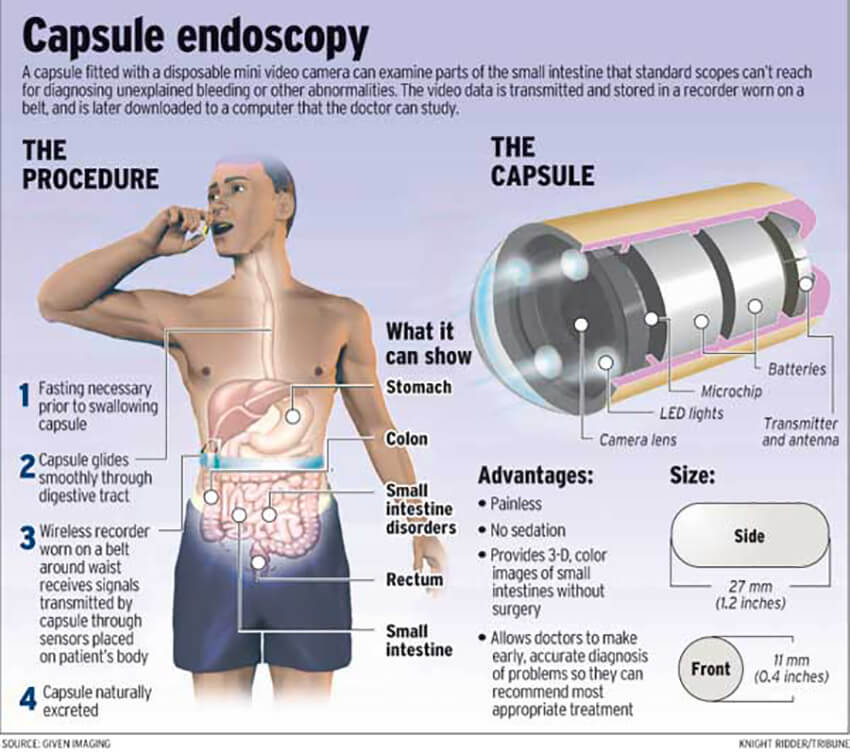 Capsule Endoscopy | My Concierge MD in Beverly Hills